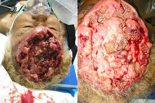 brain-maggots