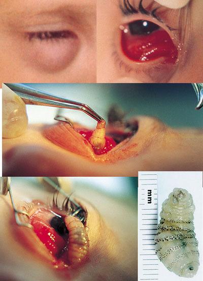 eye_worm